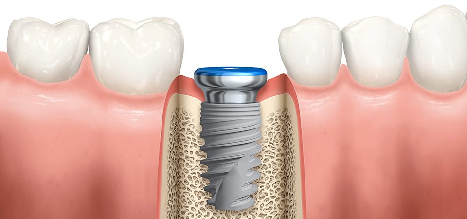 Important Questions One Should Ask Before Dental Implant