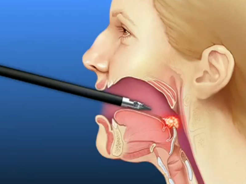 throat that collapses your airway