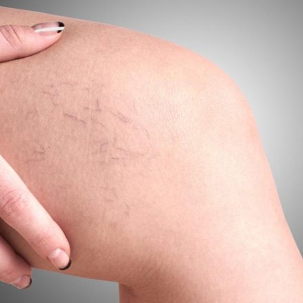 What are the Causes, Symptoms, and Diagnosis of Varicose Veins?
