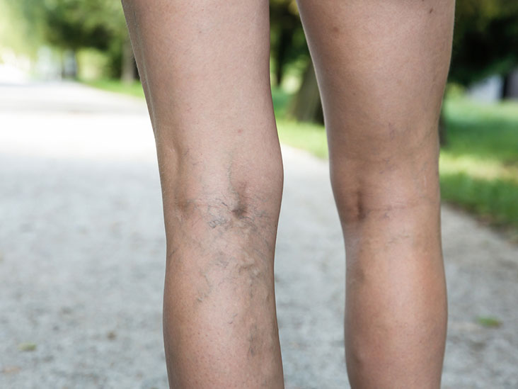 Causes, Symptoms, and Diagnosis of Varicose Veins0