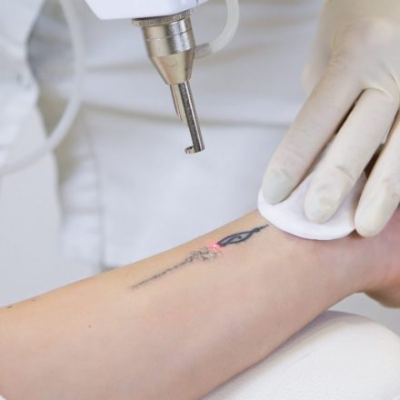 Important Questions To Ask Before Getting Tattoo Removal Treatment