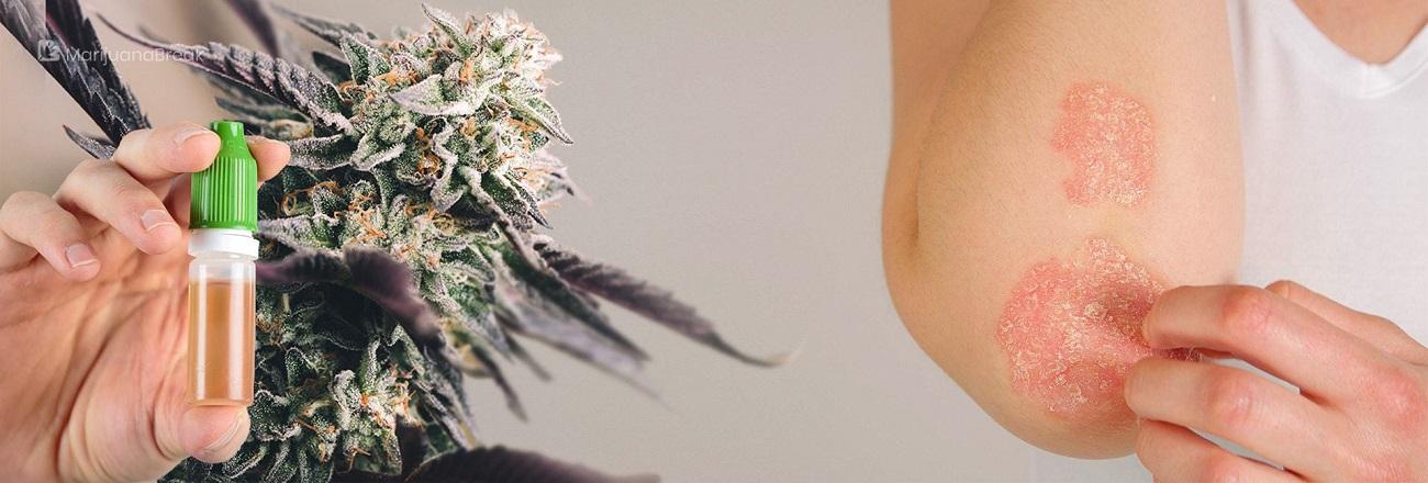CBD Oil to Cure the Symptoms of Epidermolysis Bullosa